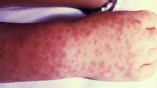 Rocky Mountain Spotted Fever: Pictures and Long-Term Effects