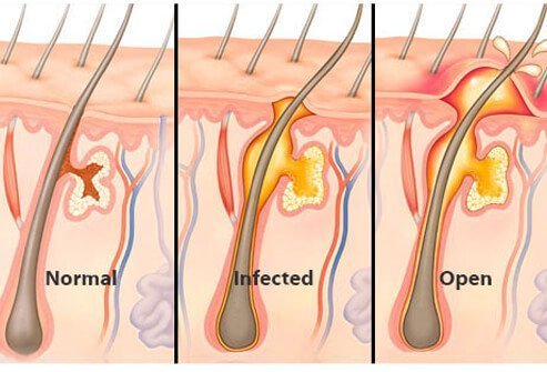 A boil, also referred to as a skin abscess, is a localized infection deep in the skin.